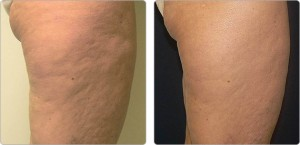 Cellulite Treatment at Texas Institute of Dermatology
