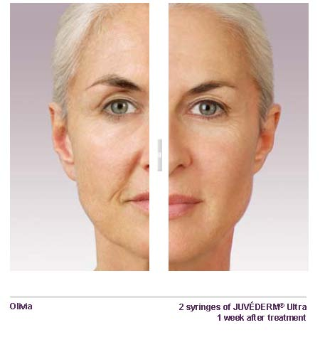 Filler Juvederm Before After