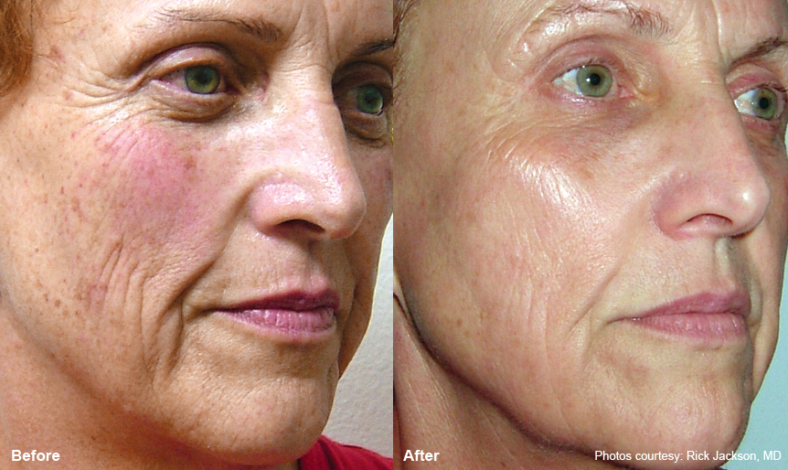 Fractional Co2 Laser Before And After