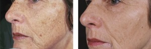 PHOTOFACIAL IN SAN ANTONIO BOERNE