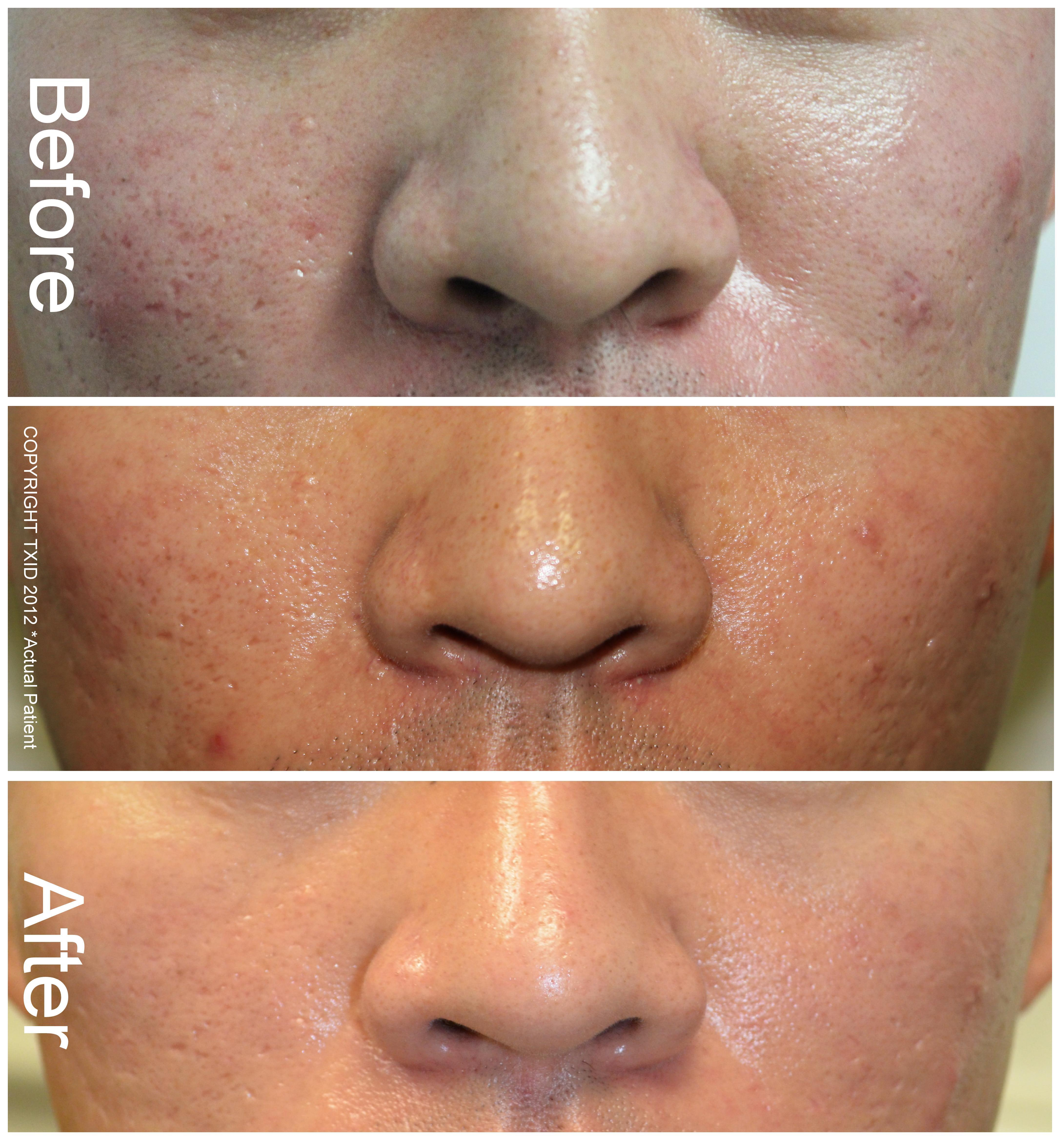 Fractional CO2 Laser Before and After For Skin