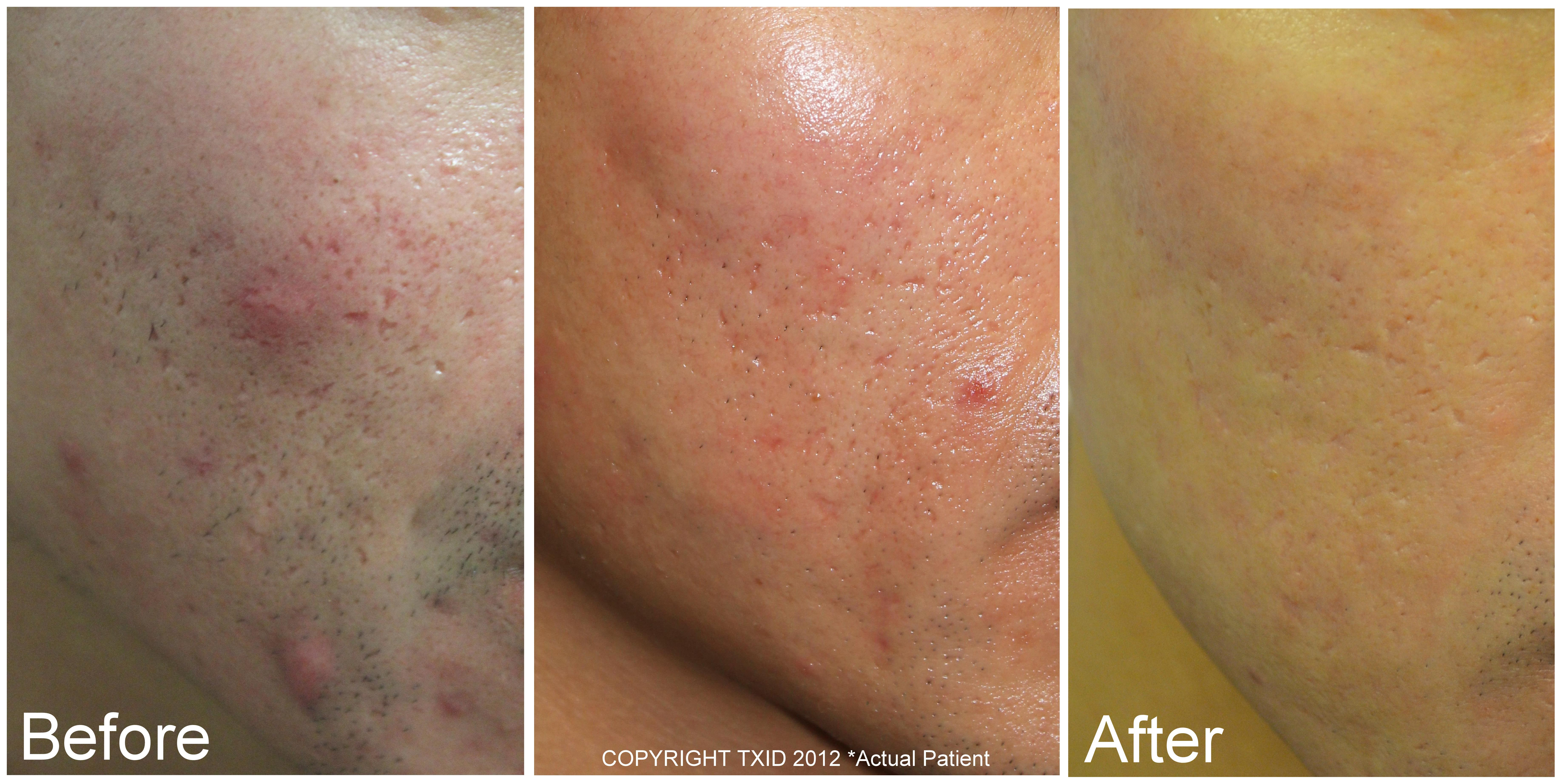 Fractional Co2 Laser Before And After Left Cheek