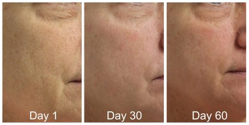 Renew 3x60 Before And After Skin Resurfacing
