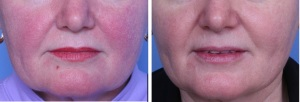 Rosacea in San Antonio Before After