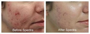 Laser Treatment of Acne Scars Before After