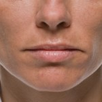 Texas Institute of Dermatology Injectable Filler befor and After