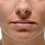 Texas Institute of Dermatology Injectable Filler before and After