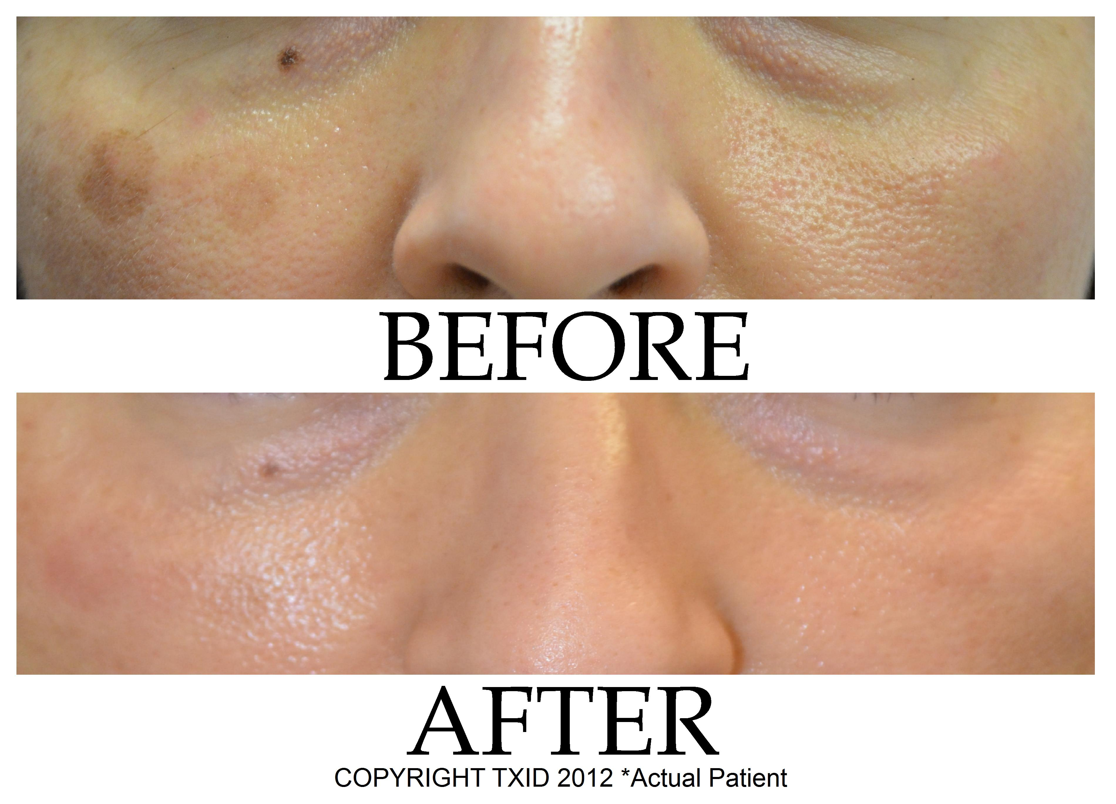 Melasma Dark Spot Treatment at San Antonio Laser Clinic