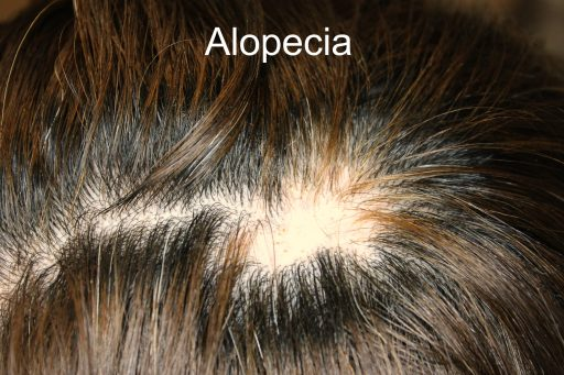 Ringworm In African American Hair Hair-loss is divided into two