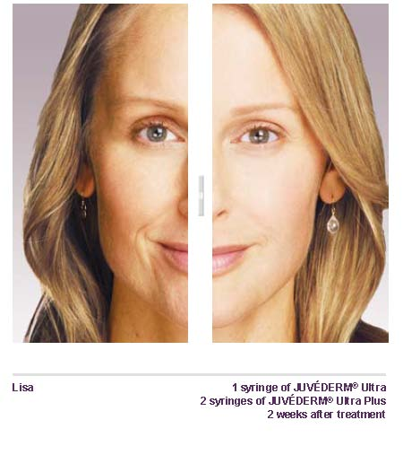 Juvederm Skin Filler Before After San Antonio Boerne