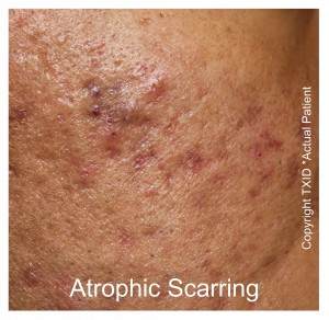 Top Dermatologist Acne Scar Treatment San Antonio Boerne