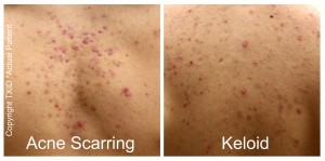Top Dermatologist San Antonio Boerne Laser Skin Resurfacing Acne Scar Treatment