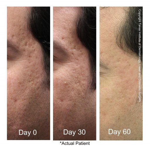 Fractional Co2 Laser Acne Scar Treatment Before And After