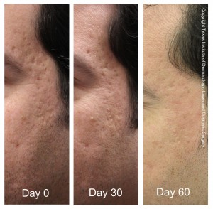 Top San Antonio Boerne Dermatologist Fractional CO2 Before and After