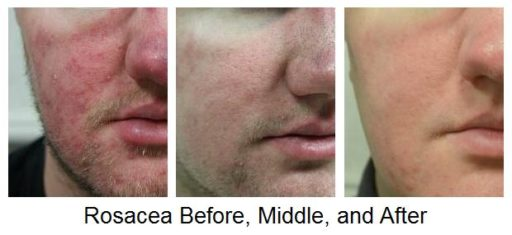 ... and redness caused by acne rosacea. Metronidazole cream also reduces