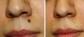 FAcial Mole Removal in San Antonio Boerne by Top San Antonio Dermatologist