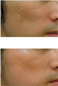 ACNE SCAR treatment in San Antonio www.txid.org