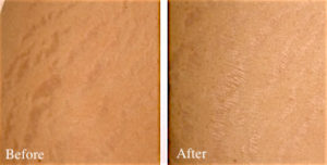 Treatment Of Stretch Marks And Striae In San Antonio By Top