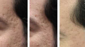 iClear Laser for acne Scar Before After